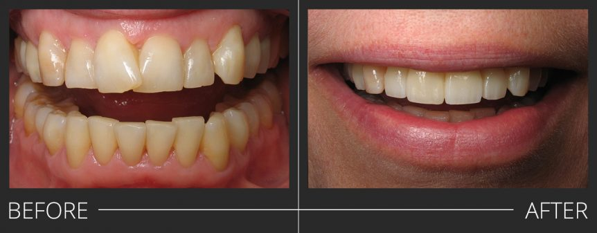 #7,10 E.Max Veneers #8,9 E.Max Crowns