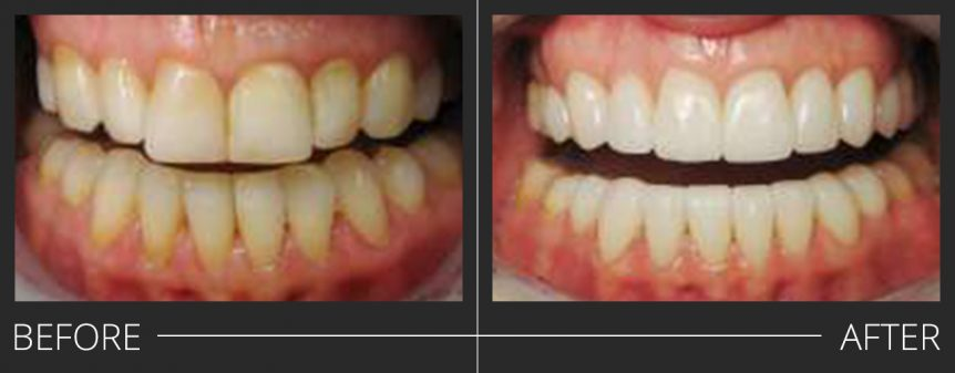#5-12 E.Max Crowns #21-28 E.Max Veneers