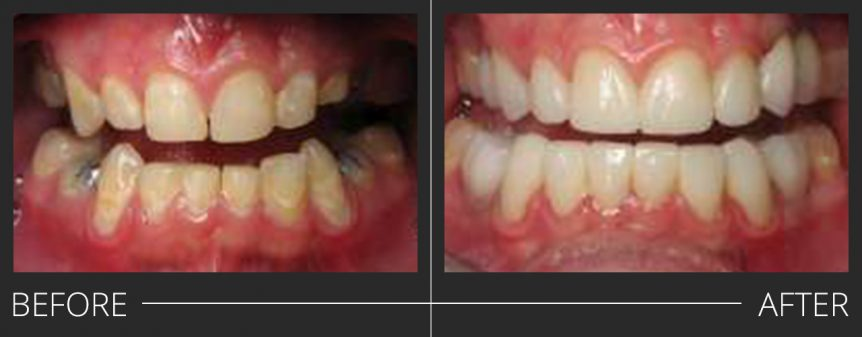 #5,12 PFZ #4,11,20,29 PFZ Implant Crowns #6-10,22-27 e.max veneers