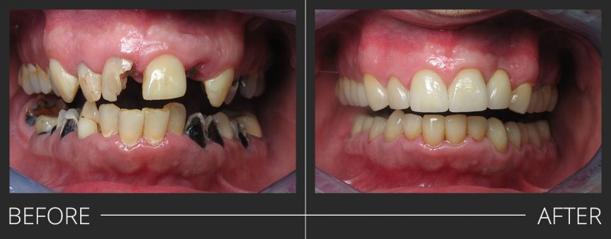 PFZ Crowns Full Mouth Reconstruction