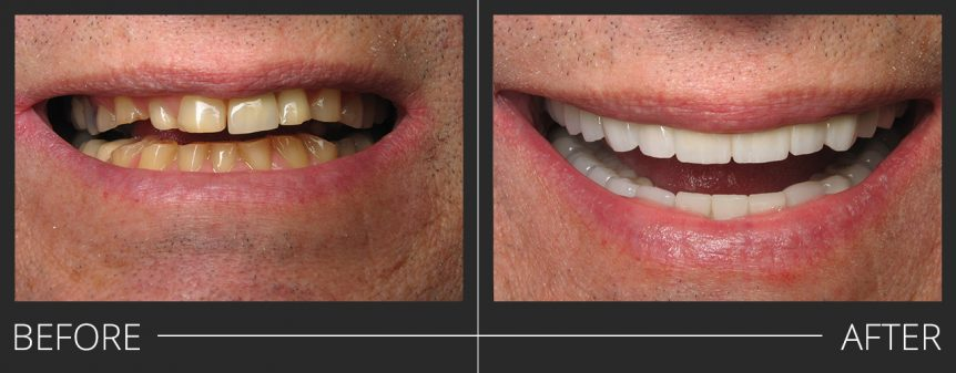 Full Mouth Reconstruction #2-15,18-22,26-30 PFZ Crowns #23-25 E.Max Crowns