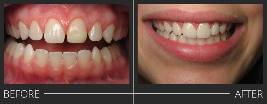 #7,8,10 Veneers #9 E.Max Crown