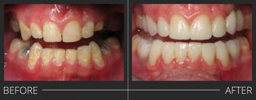 #5,12 PFZ #4,11,20,29 PFZ Implant Crowns #6-10,22-27 e.max veneers