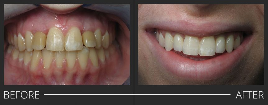 #7 and #10 PFZ Implant